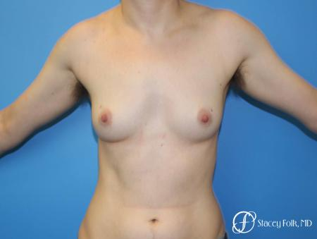 Denver FTM Female to male top surgery 6608 - Before Image