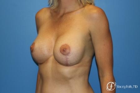 Breast augmentation with breast lift (Mastopexy) -  After Image 2