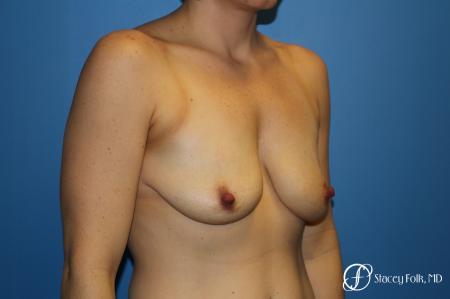 Denver Breast Lift (Mastopexy) with agumentation 9093 - Before Image 2