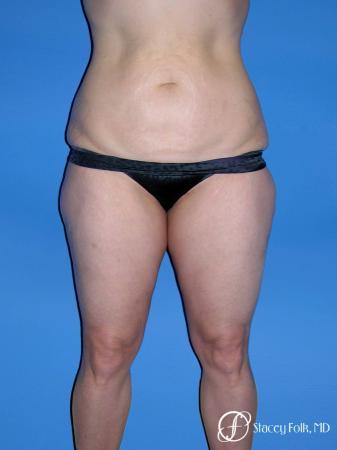 Denver Body Lift Belt lipectomy & liposuction 5264 - Before Image