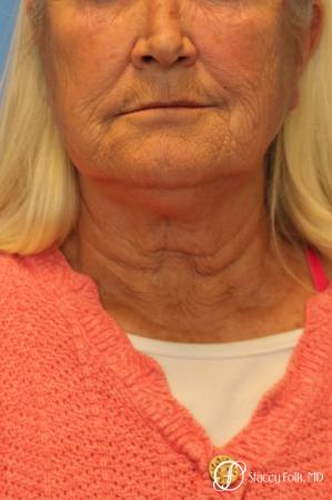 Facelift and Laser - Before and After Image 2