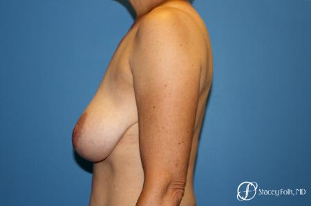 Denver Breast Reduction and Breast Lift - Mastopexy 8231 - Before and After Image 2