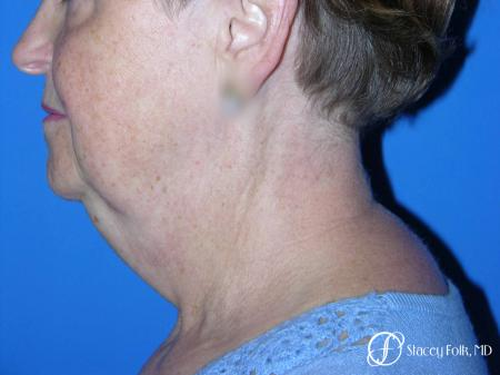 Denver Facial Rejuvenation Face Lift and Fat Injections 7130 - Before Image 1