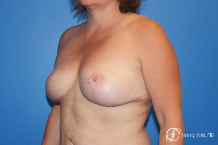 Breast Revision - Removal of Implant, Fat Transfer, Breast Lift (Mastopexy) -  After Image 2