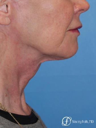 Denver Facial Rejuvenation Face lift, Fat Injections, and Laser Resurfacing 7131 -  After Image 1