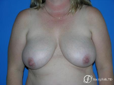 Denver Breast Reduction 4790 - Before Image 1