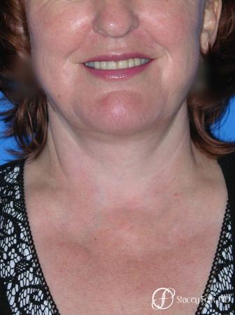 Denver Facial Rejuvenation Face lift, Fat Injections, Laser Resurfacing 7133 -  After Image 3