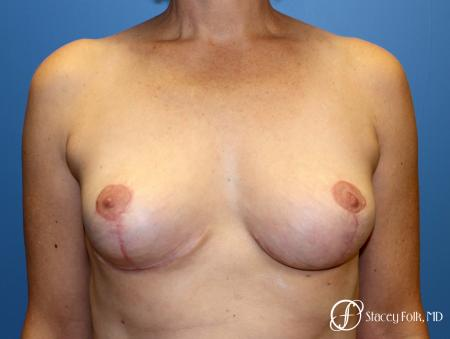 Denver Breast Reduction and Breast Lift - Mastopexy 8231 - After Image