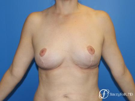 Fat Transfer Breast Lift (Mastopexy) - After Image
