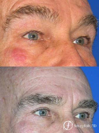 Denver Blepharoplasty 8273 -  After Image 1