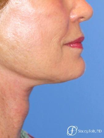 Denver Facial Rejuvenation Face Lift, Fat Injections, Laser Resurfacing 7116 -  After Image 1