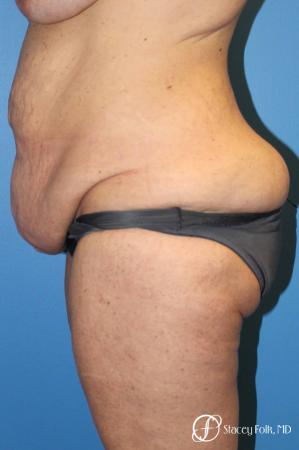 Denver Body Lift belt lipectomy, liposuction, mastopexy 5935 - Before and After Image 3