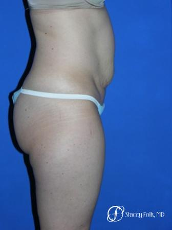 Denver Tummy Tuck 35 - Before and After Image 3