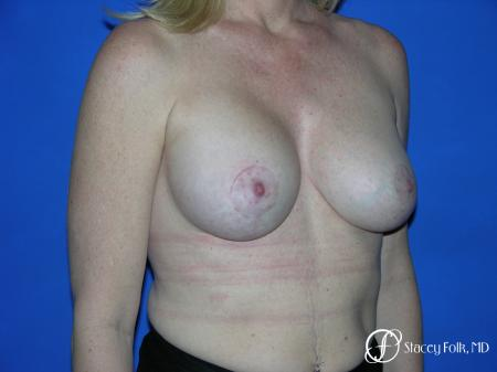 Denver Breast Lift and Augmentation 4555 -  After Image 2