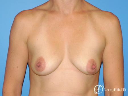 Denver Breast Augmentation with a Breast Lift - Mastopexy 8361 - Before Image