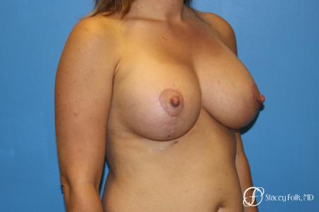 Denver Breast Lift and Augmentation 8629 -  After Image 2