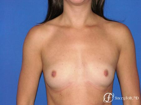 Denver Breast Augmentation 4779 - Before Image 1