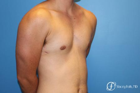 Denver FTM female to male top surgery using gynecomastia technique 5128 - 1 After Image 2