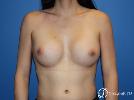 MTF (Male To Female Top Surgery) Breast Augmentation -  After Image 1