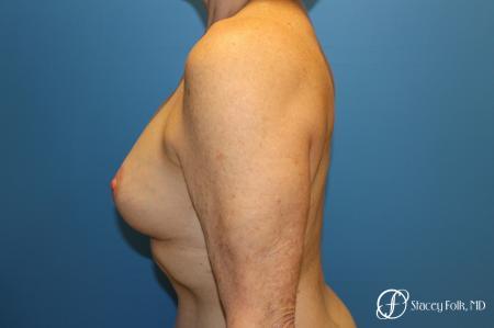 Denver Breast Revision 7990 -  After Image 3