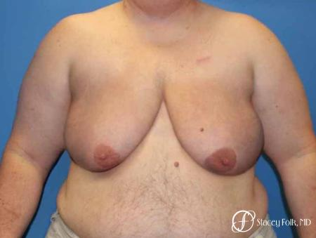 Denver Female to male top surgery 5258 - Before Image 1