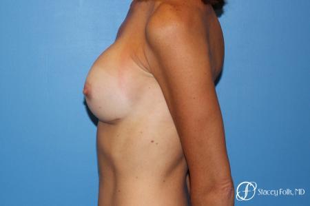 Denver Breast Revision 8504 -  After Image 4