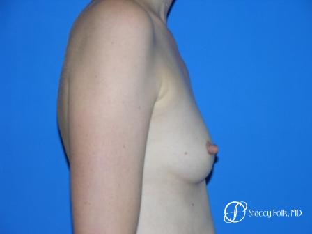 Denver Breast Augmentation 9 - Before and After Image 3