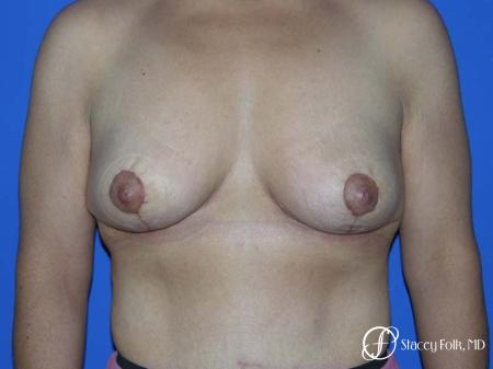 Denver Breast Lift - Mastopexy 7982 -  After Image 1