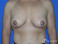 Denver Breast Lift - Mastopexy 7982 - After Image