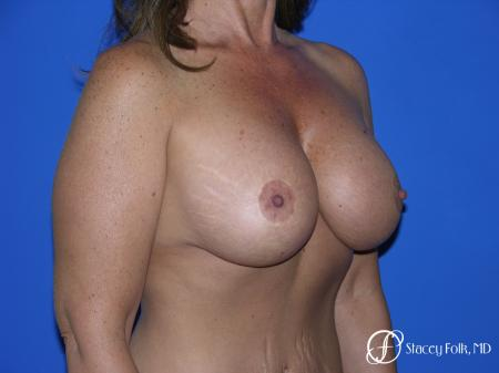 Denver Breast Lift and Augmentation 4560 -  After Image 2