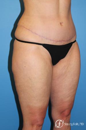 Tummy Tuck - Abdominoplasty -  After Image 2