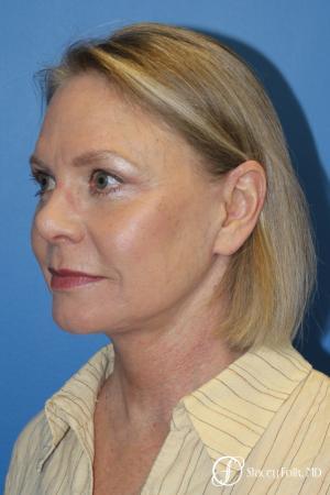 Facial Rejuvenation: Patient 1 - After Image 2