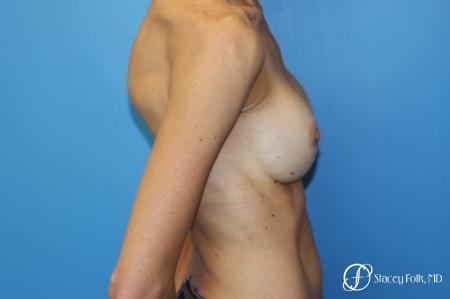 Denver Breast Revision 8504 - Before Image 3