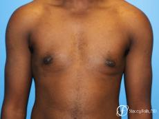 Denver FTM Female to male top surgery using gynecomastia technique 5497 - After Image