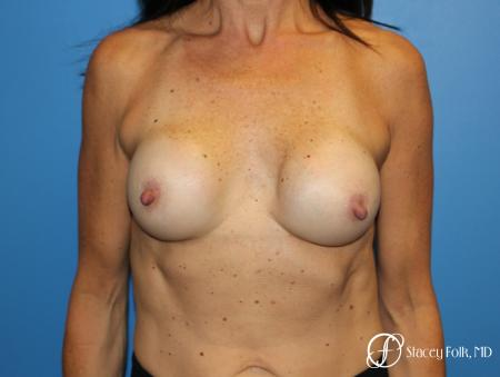 Denver Breast Revision 8272 - Before Image