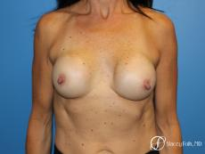Denver Breast Revision 8272 - Before Image