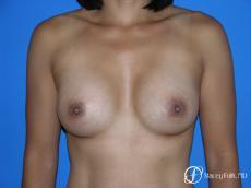 Denver Breast Augmentation 3629 - After Image