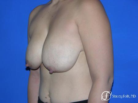 Denver Breast reduction 5842 - Before Image 2