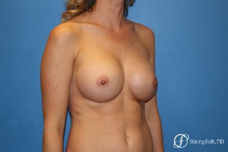 Denver Breast augmentation 4740 -  After Image 2