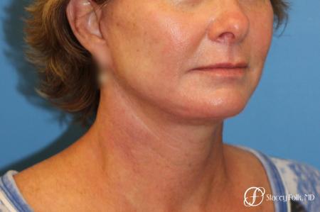 Denver Facial Rejuvenation Face Lift 7121 -  After Image 4