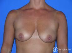 Denver Breast Lift and Augmentation 4556 - Before Image