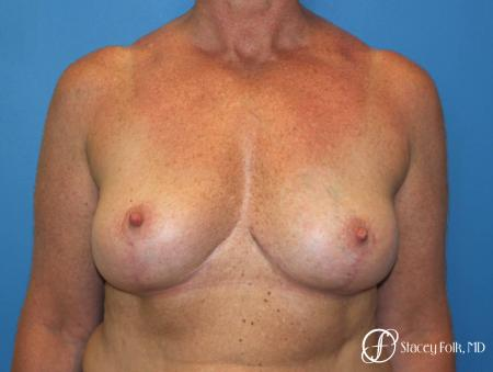 Denver Breast Revision 8543 -  After Image 1
