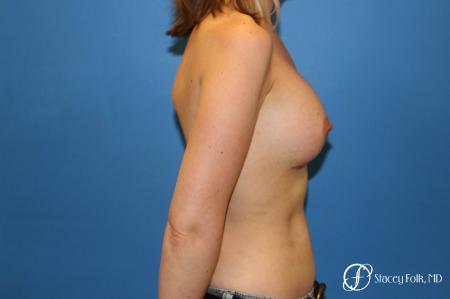 Denver Breast augmentation 7110 -  After Image 3