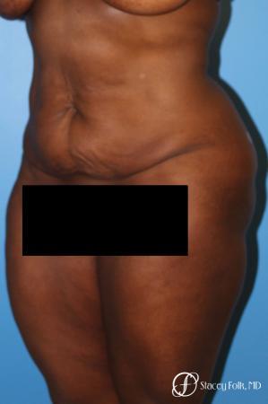 Denver Tummy Tuck - Abdominoplasty 7514 - Before Image 2