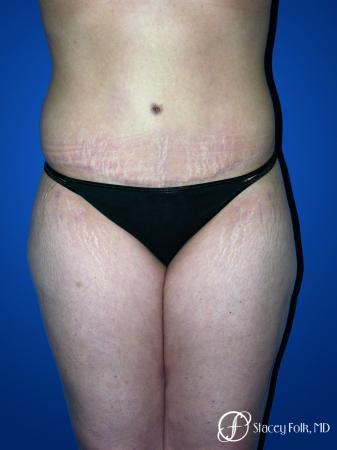 Denver Tummy Tuck 23 -  After Image 1