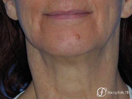 Denver Facial Rejuvenation Face Lift and Fat Injection 7124 - Before Image 1
