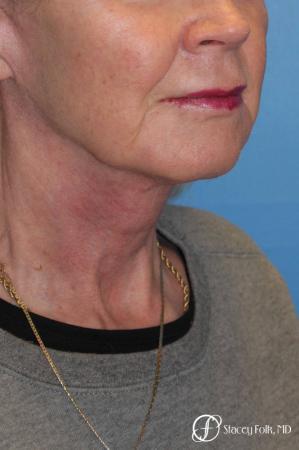 Denver Facial Rejuvenation Face lift, Fat Injections, and Laser Resurfacing 7131 -  After Image 4