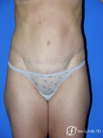 Denver Tummy Tuck 3528 - After Image