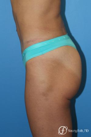 Denver Tummy Tuck - Abdominoplasty 8299 -  After Image 3