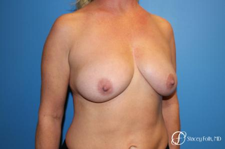 Denver Breast Lift 10252 - Before and After Image 4